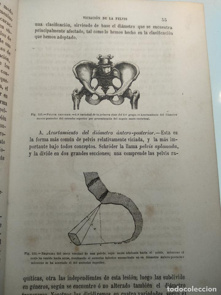 Libros antiguos: TRATADO DE OBSTETRICIA - DOCTOR F. DE P. CAMPÁ - 2 TOMOS - L.DE PASCUAL AGUILAR - VALENCIA - 1885 - - Foto 21 - 137879202