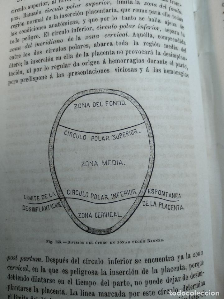 Libros antiguos: TRATADO DE OBSTETRICIA - DOCTOR F. DE P. CAMPÁ - 2 TOMOS - L.DE PASCUAL AGUILAR - VALENCIA - 1885 - - Foto 24 - 137879202
