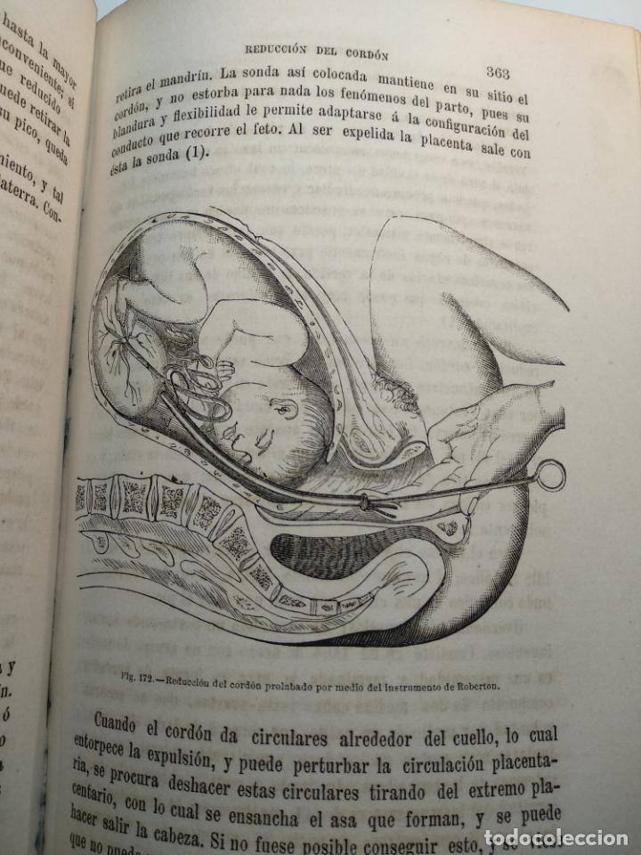 Libros antiguos: TRATADO DE OBSTETRICIA - DOCTOR F. DE P. CAMPÁ - 2 TOMOS - L.DE PASCUAL AGUILAR - VALENCIA - 1885 - - Foto 25 - 137879202