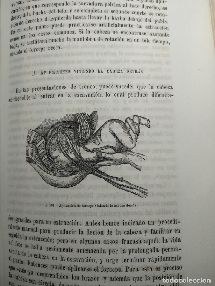 Libros antiguos: TRATADO DE OBSTETRICIA - DOCTOR F. DE P. CAMPÁ - 2 TOMOS - L.DE PASCUAL AGUILAR - VALENCIA - 1885 - - Foto 26 - 137879202