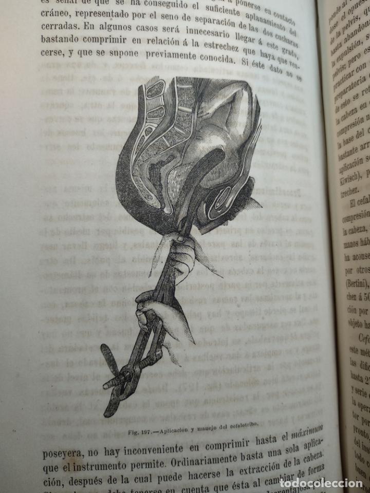 Libros antiguos: TRATADO DE OBSTETRICIA - DOCTOR F. DE P. CAMPÁ - 2 TOMOS - L.DE PASCUAL AGUILAR - VALENCIA - 1885 - - Foto 27 - 137879202