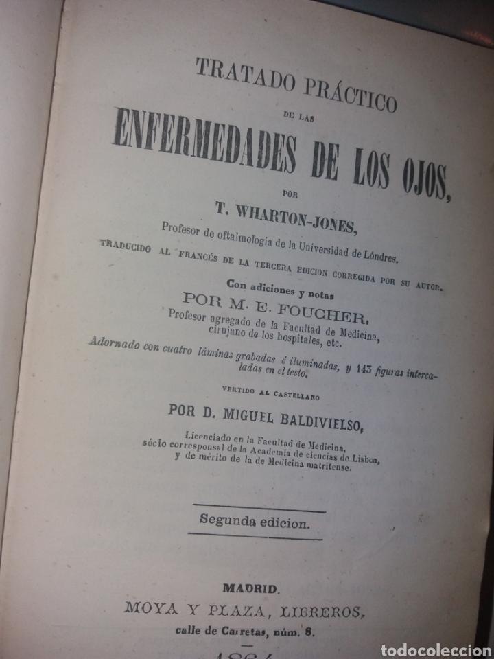 TRATADO PRÁCTICO DE LAS ENFERMEDADES DE LOS OJOS. 1864. POR T. WHARTON-JONES (Libros Antiguos, Raros y Curiosos - Ciencias, Manuales y Oficios - Medicina, Farmacia y Salud)