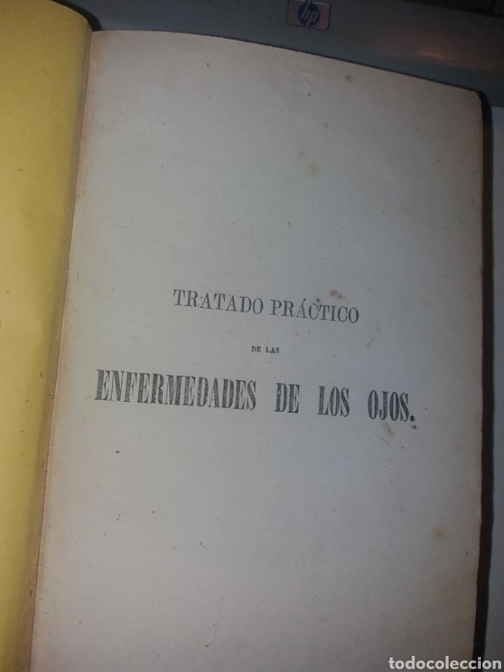 Libros antiguos: TRATADO PRÁCTICO DE LAS ENFERMEDADES DE LOS OJOS. 1864. POR T. WHARTON-JONES - Foto 2 - 139195212