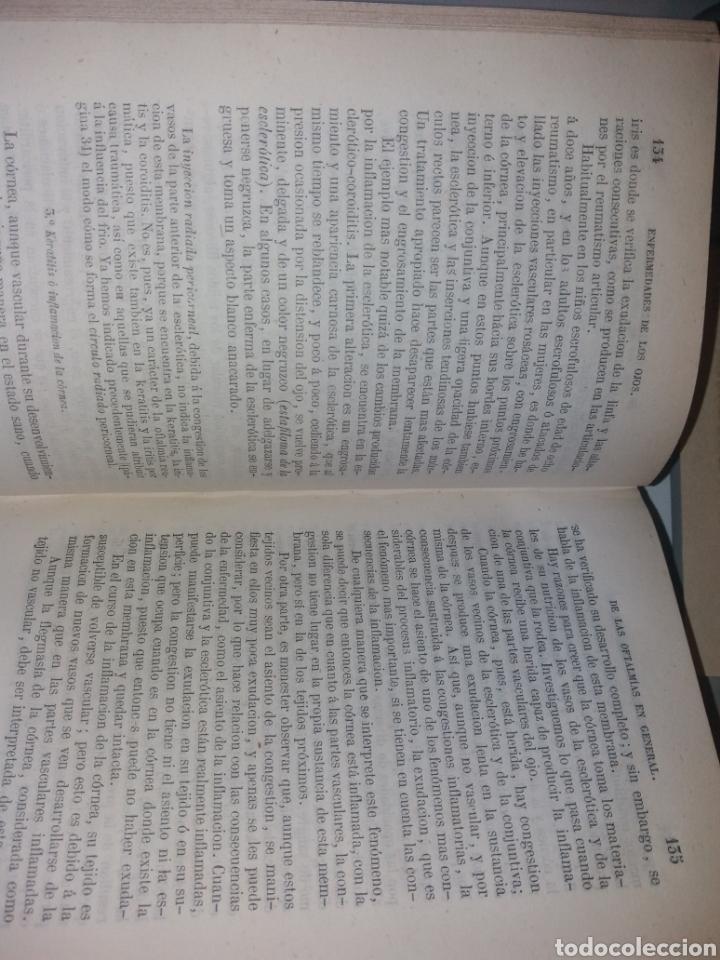 Libros antiguos: TRATADO PRÁCTICO DE LAS ENFERMEDADES DE LOS OJOS. 1864. POR T. WHARTON-JONES - Foto 7 - 139195212