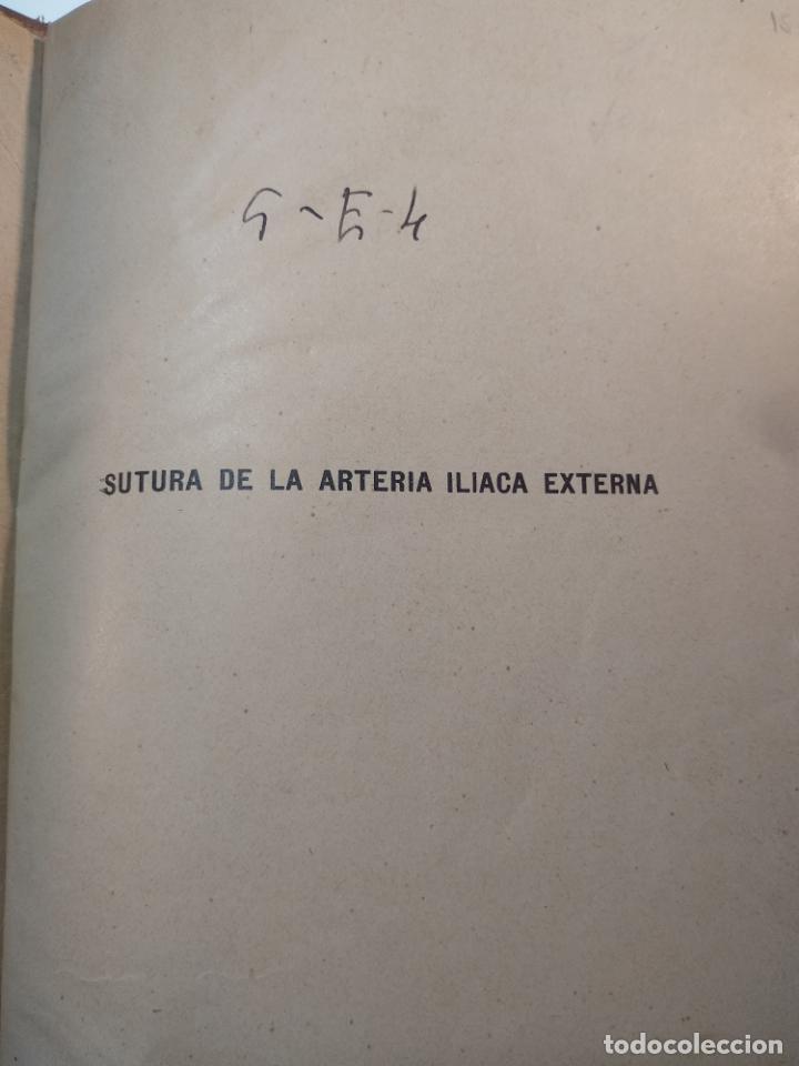 Libros antiguos: SUTURA DE LA ARTERIA ILÍACA EXTERNA EN UN HEMATOMA PULSÁTIL, Y CUATRO OBRAS MAS SOBRE HERNIAS - - Foto 2 - 140752058