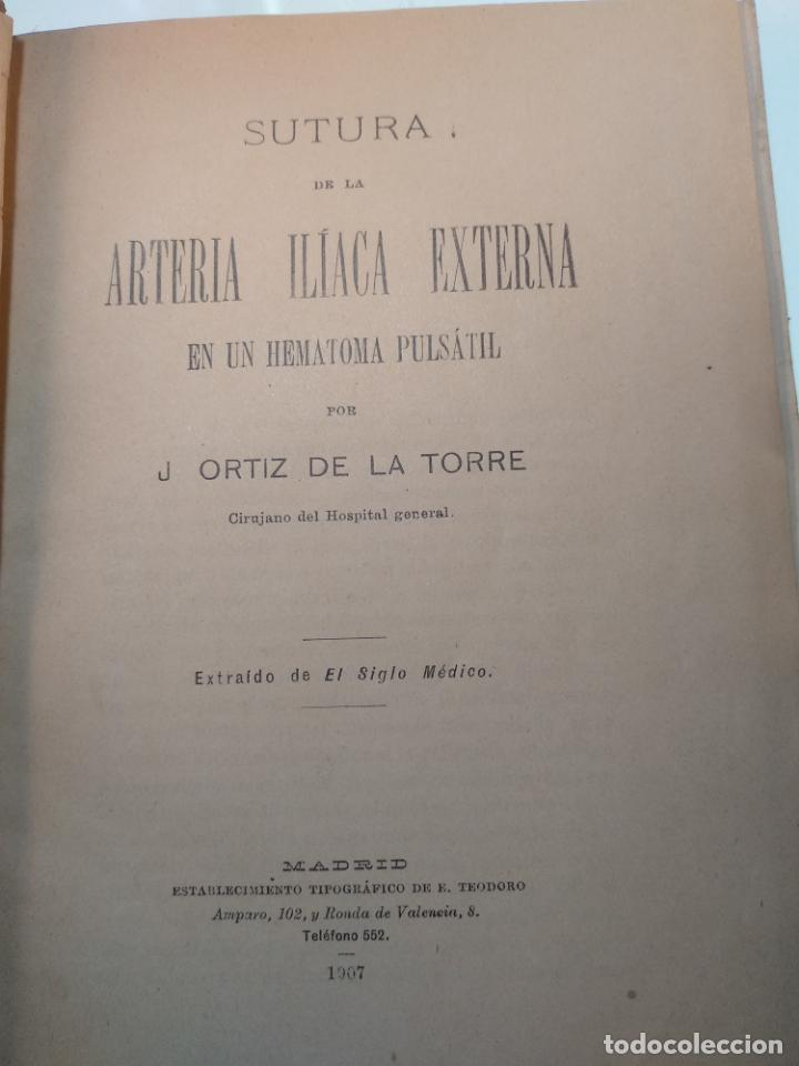 Libros antiguos: SUTURA DE LA ARTERIA ILÍACA EXTERNA EN UN HEMATOMA PULSÁTIL, Y CUATRO OBRAS MAS SOBRE HERNIAS - - Foto 3 - 140752058