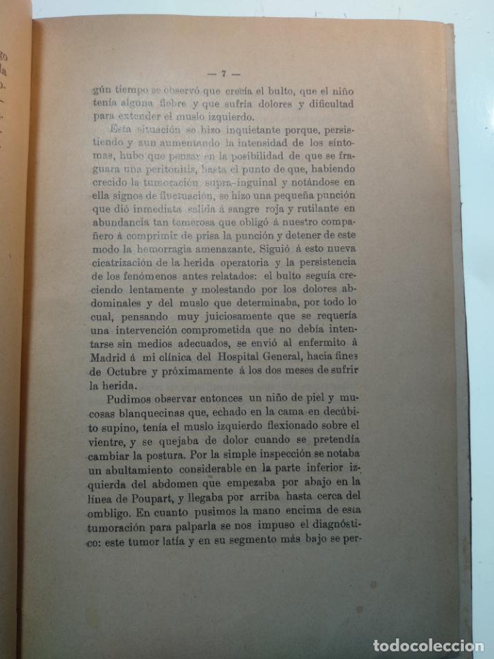 Libros antiguos: SUTURA DE LA ARTERIA ILÍACA EXTERNA EN UN HEMATOMA PULSÁTIL, Y CUATRO OBRAS MAS SOBRE HERNIAS - - Foto 4 - 140752058