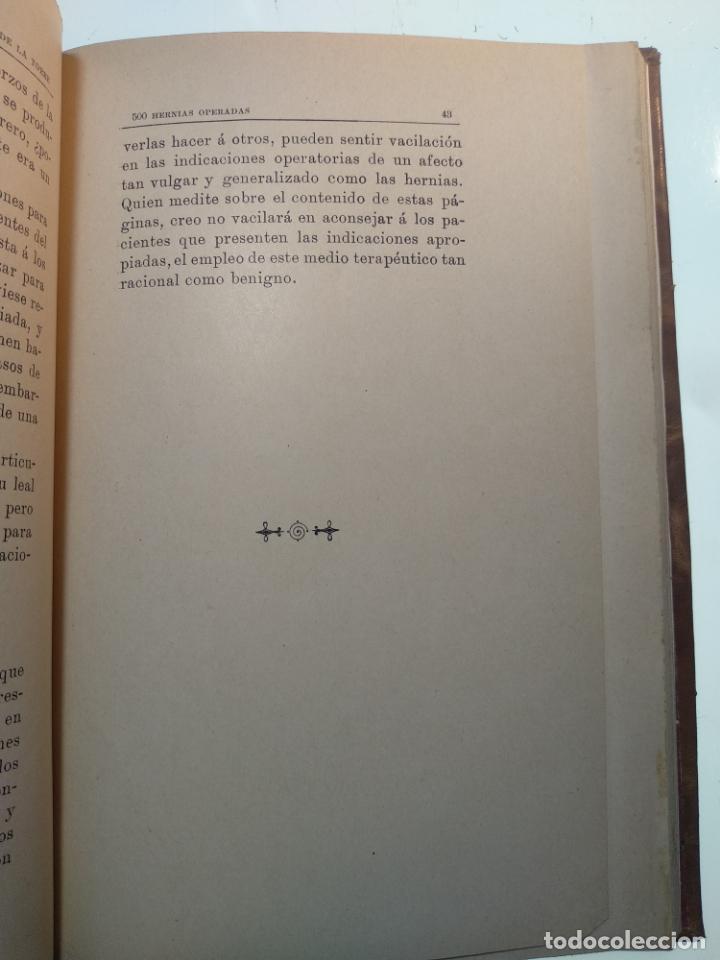 Libros antiguos: SUTURA DE LA ARTERIA ILÍACA EXTERNA EN UN HEMATOMA PULSÁTIL, Y CUATRO OBRAS MAS SOBRE HERNIAS - - Foto 7 - 140752058
