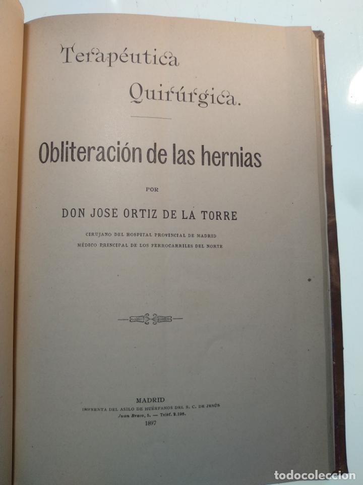 Libros antiguos: SUTURA DE LA ARTERIA ILÍACA EXTERNA EN UN HEMATOMA PULSÁTIL, Y CUATRO OBRAS MAS SOBRE HERNIAS - - Foto 9 - 140752058