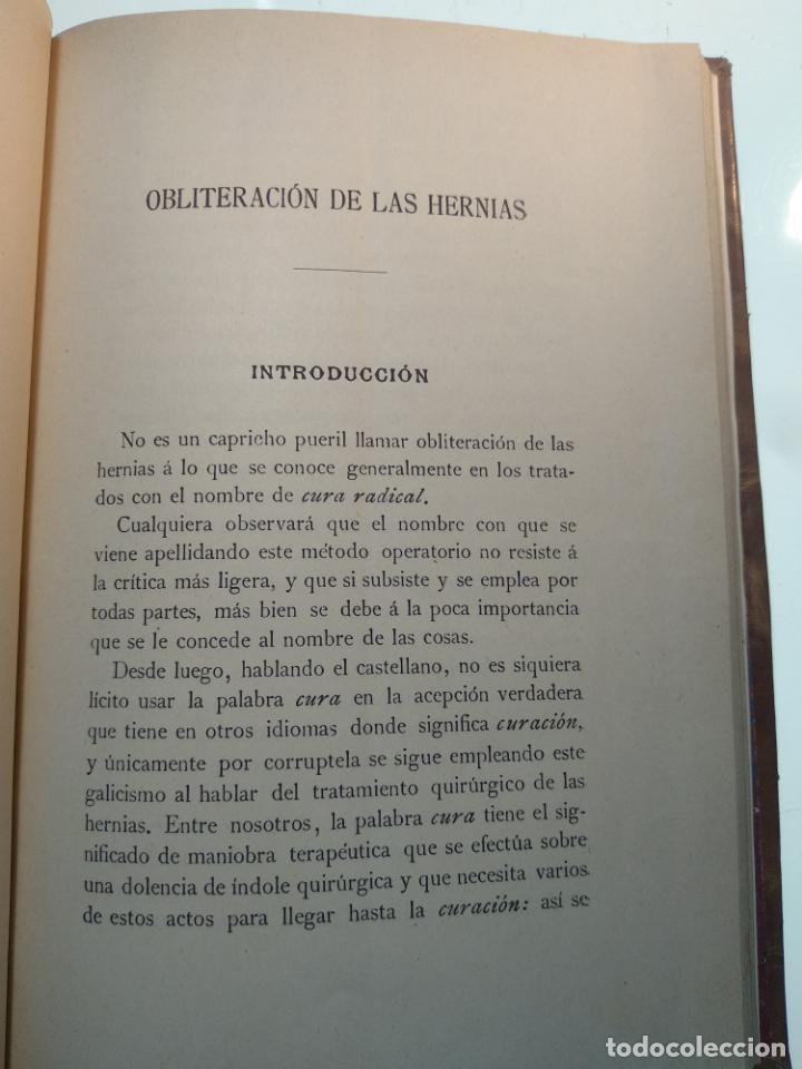 Libros antiguos: SUTURA DE LA ARTERIA ILÍACA EXTERNA EN UN HEMATOMA PULSÁTIL, Y CUATRO OBRAS MAS SOBRE HERNIAS - - Foto 10 - 140752058