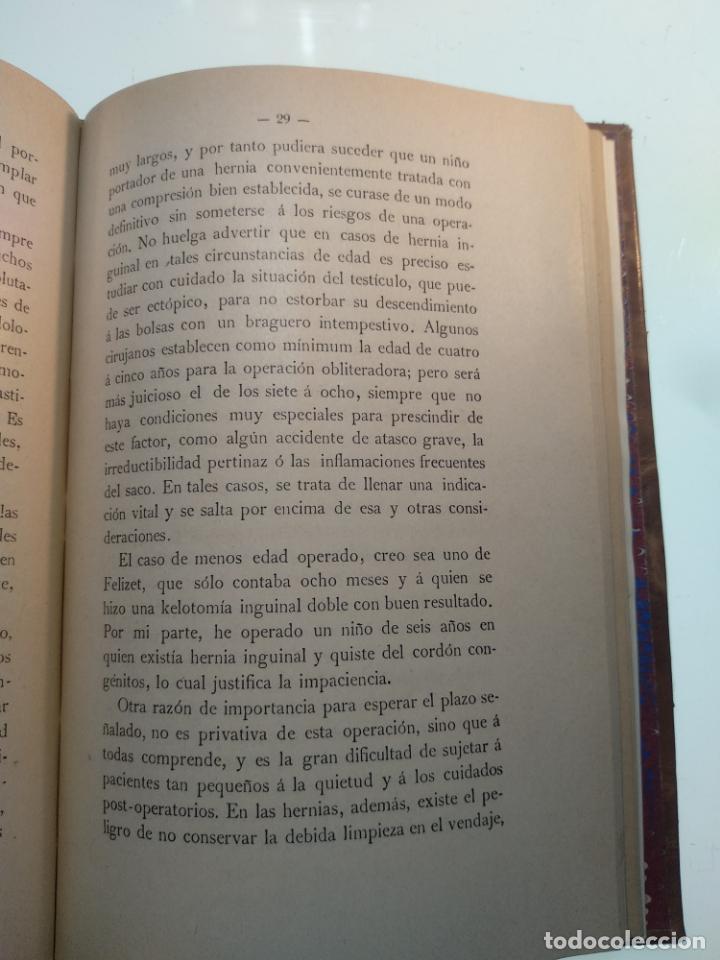 Libros antiguos: SUTURA DE LA ARTERIA ILÍACA EXTERNA EN UN HEMATOMA PULSÁTIL, Y CUATRO OBRAS MAS SOBRE HERNIAS - - Foto 11 - 140752058