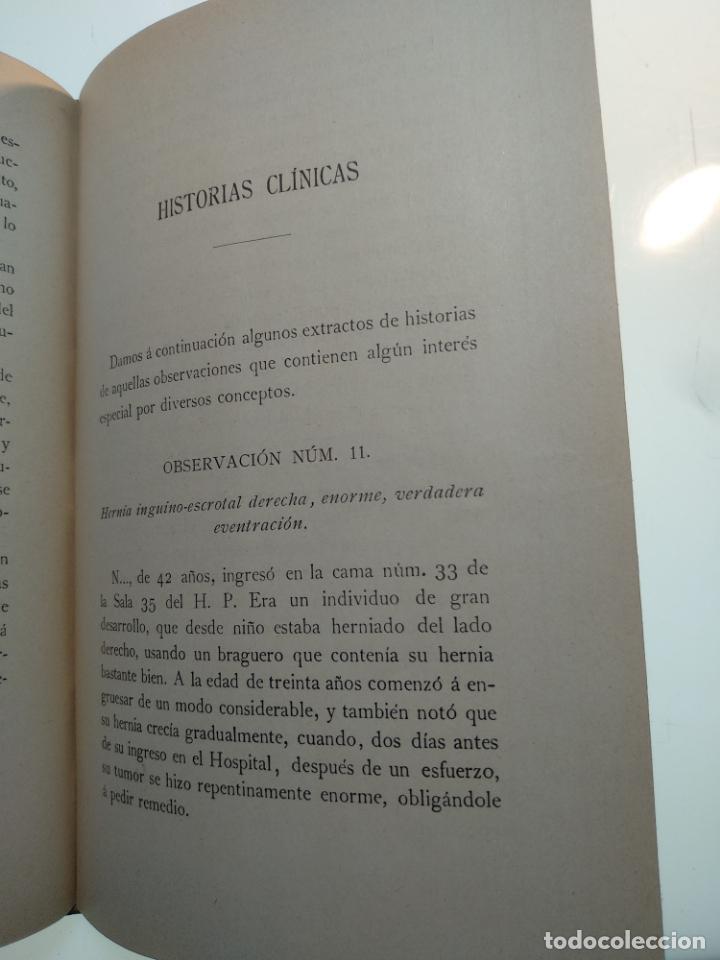 Libros antiguos: SUTURA DE LA ARTERIA ILÍACA EXTERNA EN UN HEMATOMA PULSÁTIL, Y CUATRO OBRAS MAS SOBRE HERNIAS - - Foto 12 - 140752058