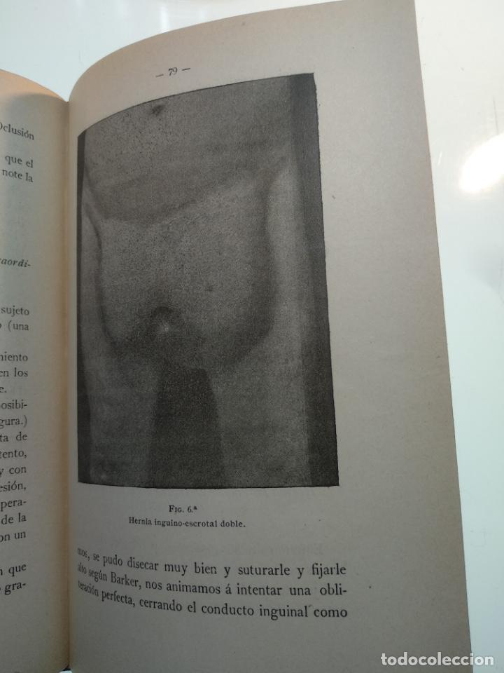 Libros antiguos: SUTURA DE LA ARTERIA ILÍACA EXTERNA EN UN HEMATOMA PULSÁTIL, Y CUATRO OBRAS MAS SOBRE HERNIAS - - Foto 13 - 140752058