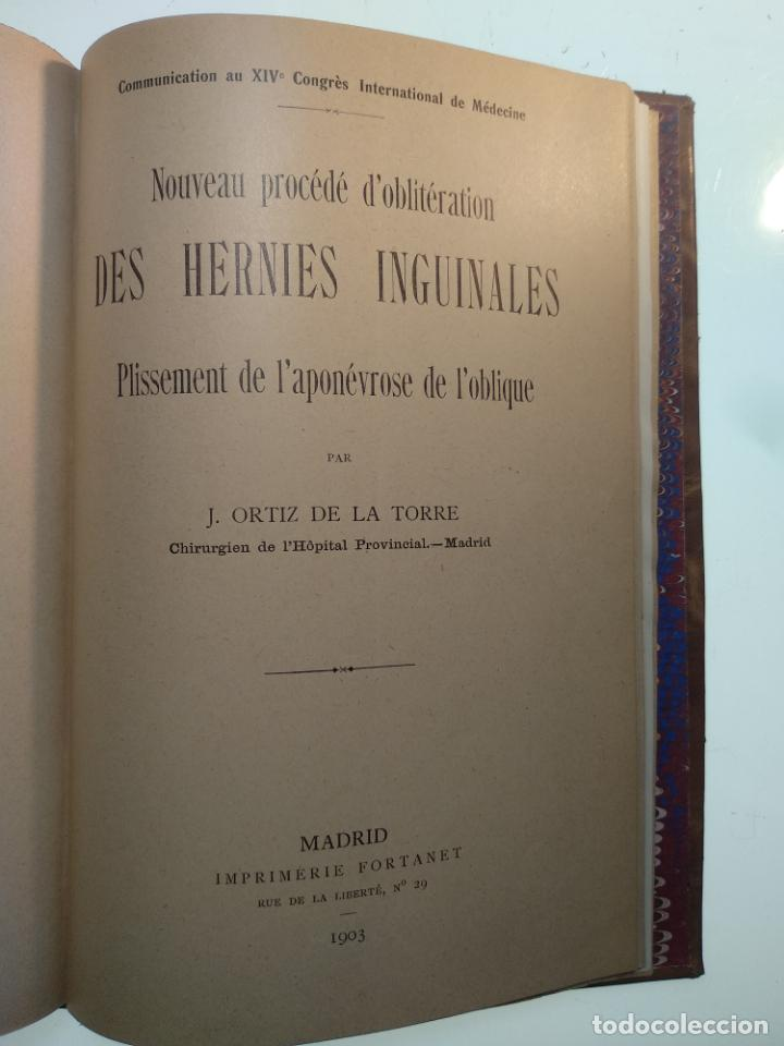 Libros antiguos: SUTURA DE LA ARTERIA ILÍACA EXTERNA EN UN HEMATOMA PULSÁTIL, Y CUATRO OBRAS MAS SOBRE HERNIAS - - Foto 14 - 140752058