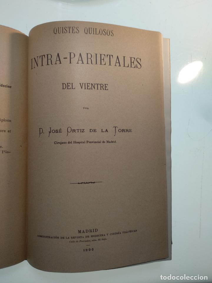 Libros antiguos: SUTURA DE LA ARTERIA ILÍACA EXTERNA EN UN HEMATOMA PULSÁTIL, Y CUATRO OBRAS MAS SOBRE HERNIAS - - Foto 16 - 140752058