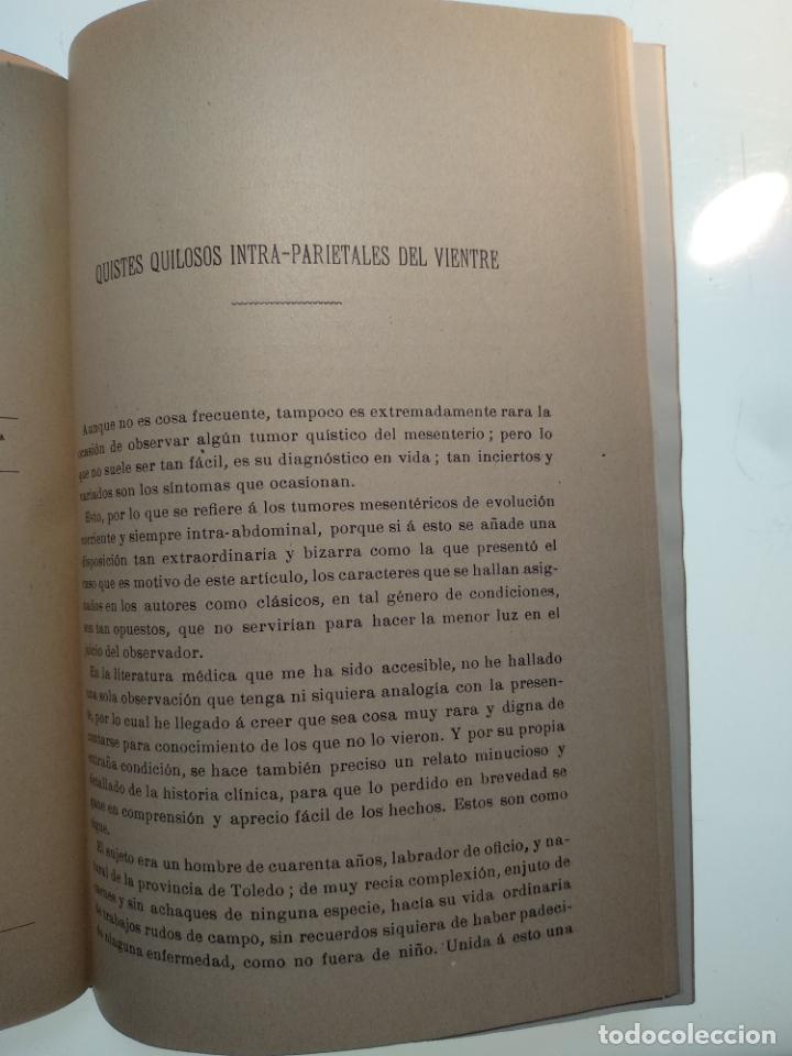 Libros antiguos: SUTURA DE LA ARTERIA ILÍACA EXTERNA EN UN HEMATOMA PULSÁTIL, Y CUATRO OBRAS MAS SOBRE HERNIAS - - Foto 17 - 140752058