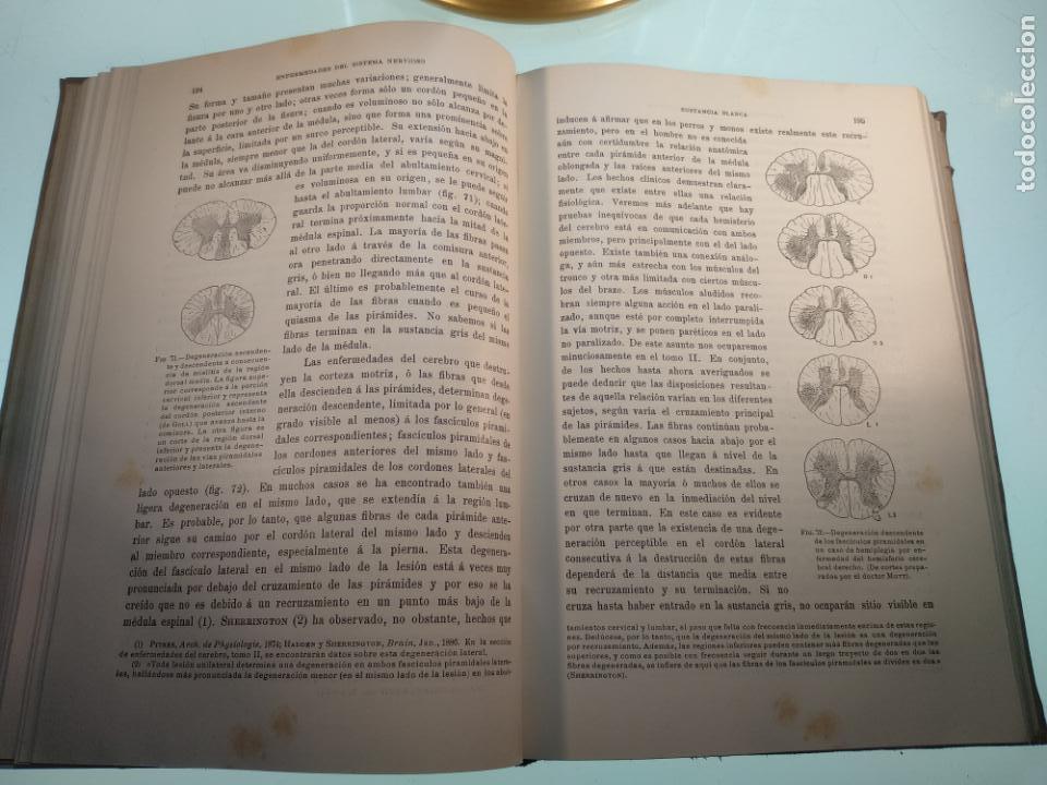 Libros antiguos: ENFERMEDADES DEL SISTEMA NERVIOSO - G. R. GOWERS - 2 TOMOS - TRADUCCIÓN DR. L. GÓNGORA - ESPASA - - Foto 7 - 141343594