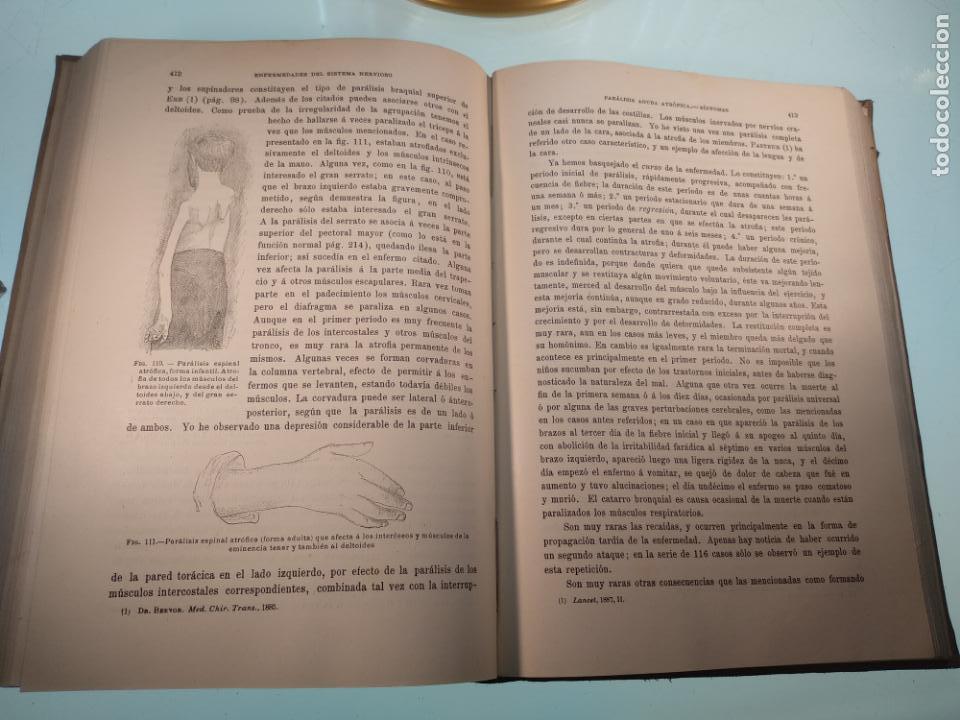 Libros antiguos: ENFERMEDADES DEL SISTEMA NERVIOSO - G. R. GOWERS - 2 TOMOS - TRADUCCIÓN DR. L. GÓNGORA - ESPASA - - Foto 8 - 141343594