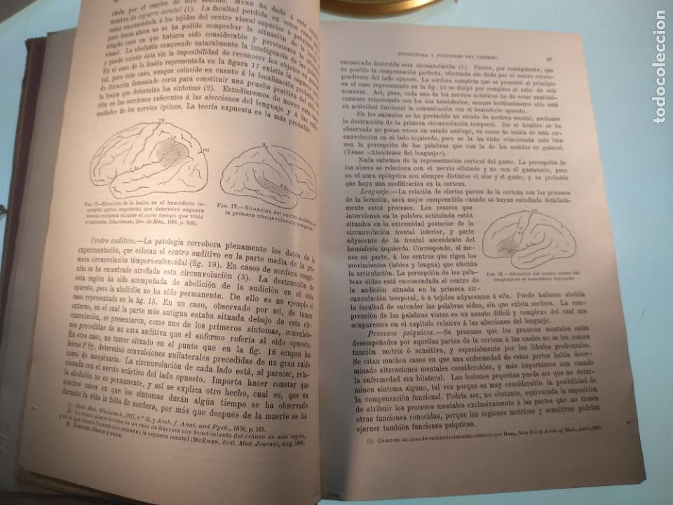 Libros antiguos: ENFERMEDADES DEL SISTEMA NERVIOSO - G. R. GOWERS - 2 TOMOS - TRADUCCIÓN DR. L. GÓNGORA - ESPASA - - Foto 18 - 141343594