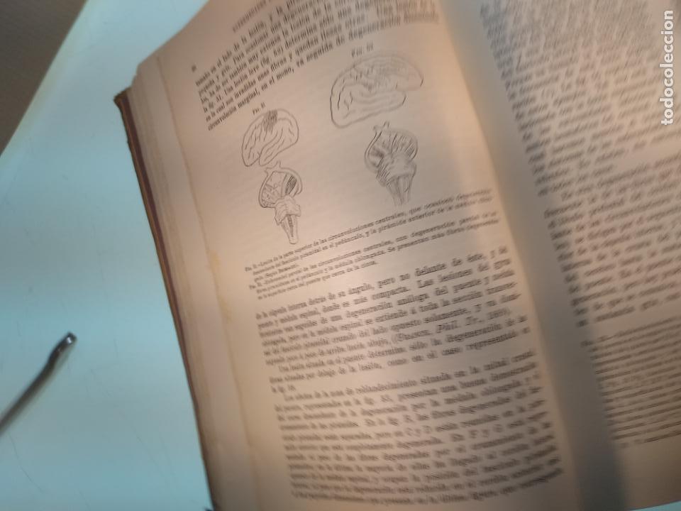 Libros antiguos: ENFERMEDADES DEL SISTEMA NERVIOSO - G. R. GOWERS - 2 TOMOS - TRADUCCIÓN DR. L. GÓNGORA - ESPASA - - Foto 19 - 141343594