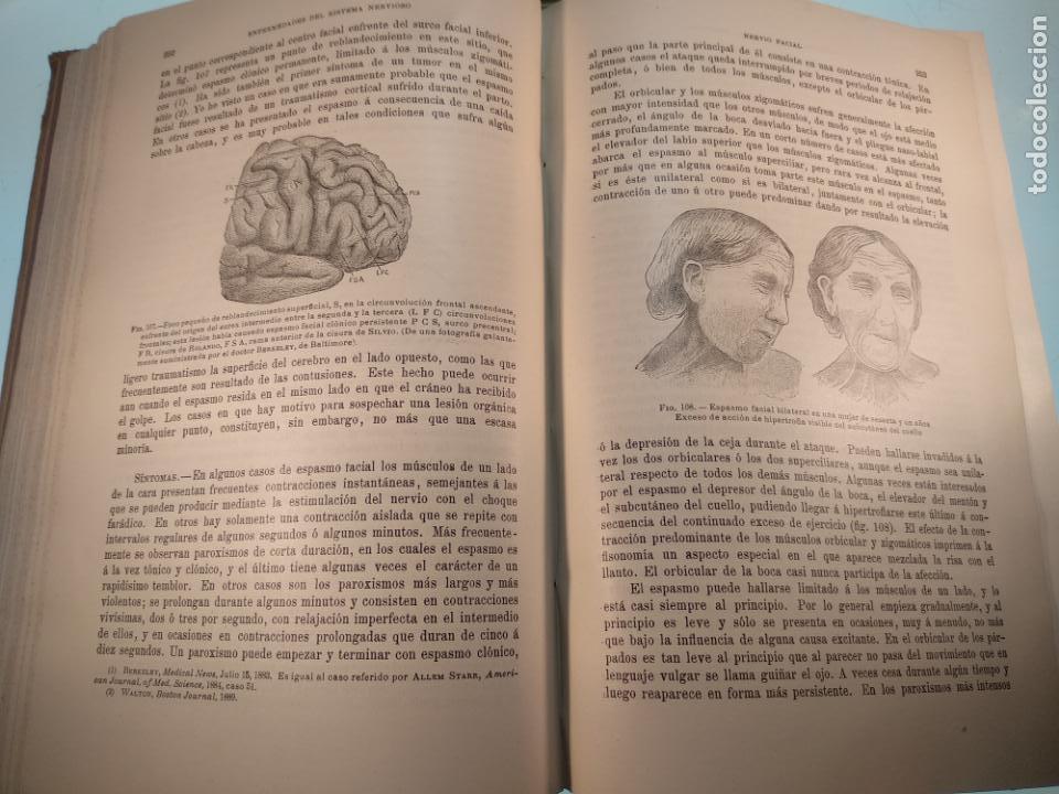 Libros antiguos: ENFERMEDADES DEL SISTEMA NERVIOSO - G. R. GOWERS - 2 TOMOS - TRADUCCIÓN DR. L. GÓNGORA - ESPASA - - Foto 20 - 141343594