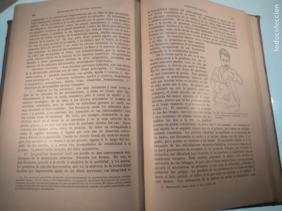 Libros antiguos: ENFERMEDADES DEL SISTEMA NERVIOSO - G. R. GOWERS - 2 TOMOS - TRADUCCIÓN DR. L. GÓNGORA - ESPASA - - Foto 22 - 141343594