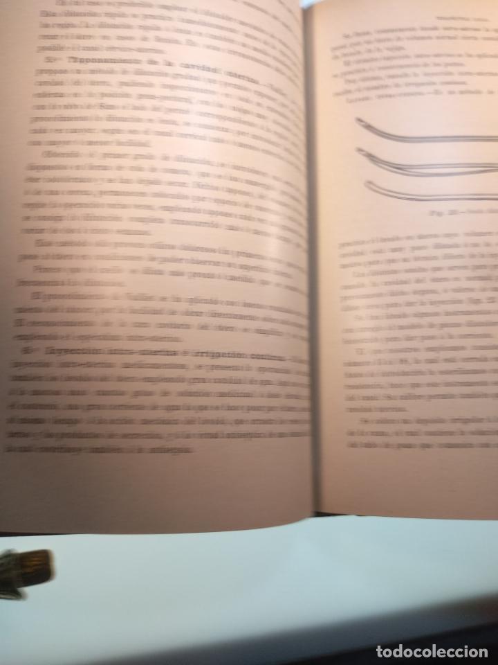 Libros antiguos: TRATADO MÉDICO-QUIRÚRGICO DE GINECOLOGÍA - DOCTORES F. LABADÍELLAGRAVE Y FÉLIX LEGUE - 270 GRABADOS - Foto 8 - 141352306