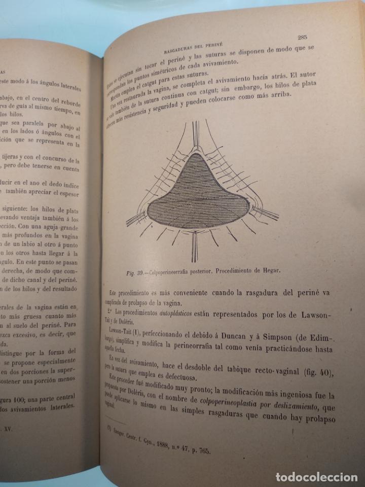 Libros antiguos: TRATADO MÉDICO-QUIRÚRGICO DE GINECOLOGÍA - DOCTORES F. LABADÍELLAGRAVE Y FÉLIX LEGUE - 270 GRABADOS - Foto 9 - 141352306
