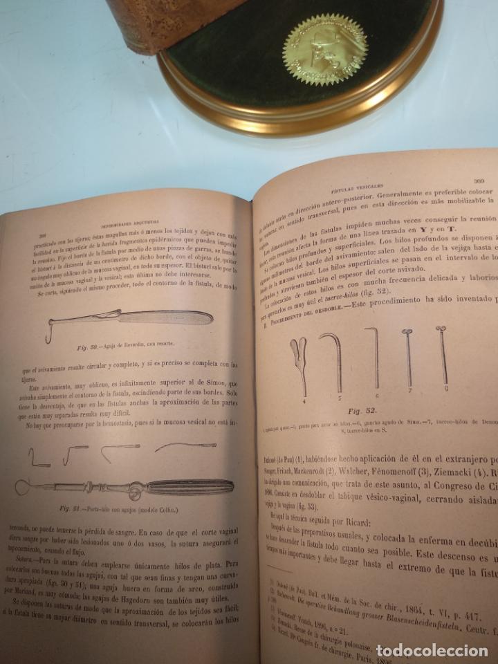 Libros antiguos: TRATADO MÉDICO-QUIRÚRGICO DE GINECOLOGÍA - DOCTORES F. LABADÍELLAGRAVE Y FÉLIX LEGUE - 270 GRABADOS - Foto 10 - 141352306