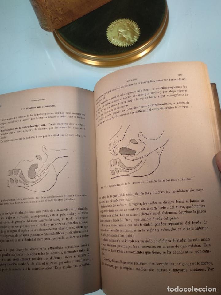 Libros antiguos: TRATADO MÉDICO-QUIRÚRGICO DE GINECOLOGÍA - DOCTORES F. LABADÍELLAGRAVE Y FÉLIX LEGUE - 270 GRABADOS - Foto 11 - 141352306