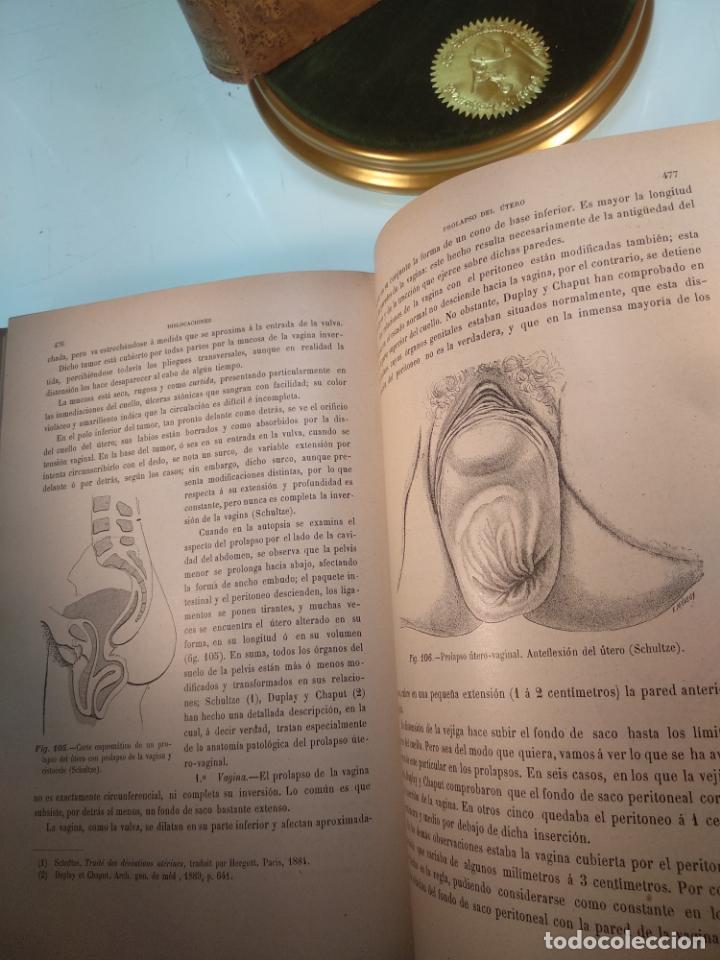 Libros antiguos: TRATADO MÉDICO-QUIRÚRGICO DE GINECOLOGÍA - DOCTORES F. LABADÍELLAGRAVE Y FÉLIX LEGUE - 270 GRABADOS - Foto 12 - 141352306
