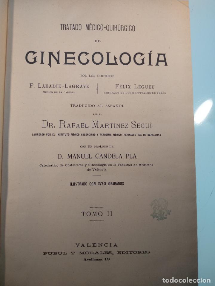 Libros antiguos: TRATADO MÉDICO-QUIRÚRGICO DE GINECOLOGÍA - DOCTORES F. LABADÍELLAGRAVE Y FÉLIX LEGUE - 270 GRABADOS - Foto 17 - 141352306