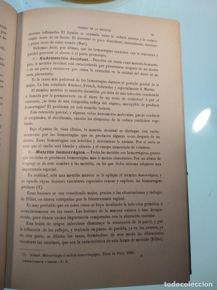 Libros antiguos: TRATADO MÉDICO-QUIRÚRGICO DE GINECOLOGÍA - DOCTORES F. LABADÍELLAGRAVE Y FÉLIX LEGUE - 270 GRABADOS - Foto 19 - 141352306