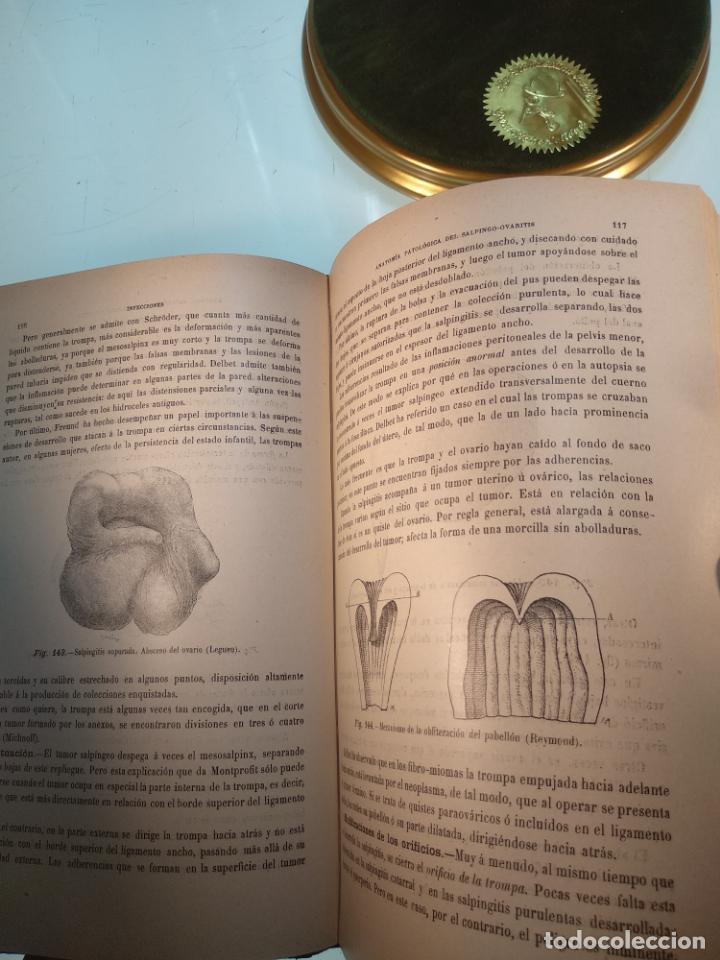 Libros antiguos: TRATADO MÉDICO-QUIRÚRGICO DE GINECOLOGÍA - DOCTORES F. LABADÍELLAGRAVE Y FÉLIX LEGUE - 270 GRABADOS - Foto 20 - 141352306