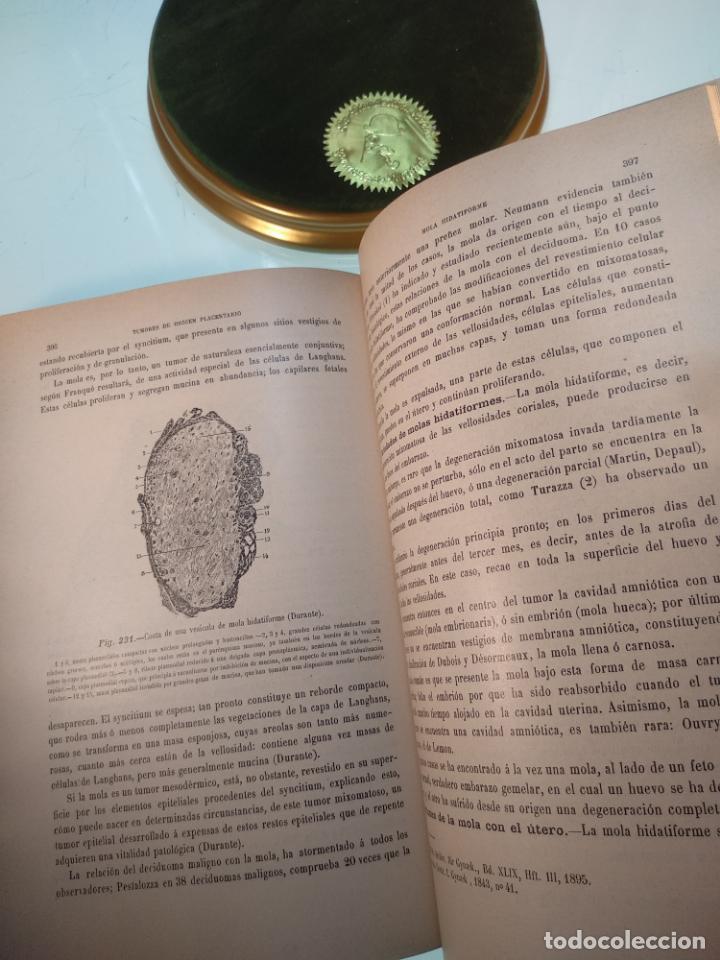 Libros antiguos: TRATADO MÉDICO-QUIRÚRGICO DE GINECOLOGÍA - DOCTORES F. LABADÍELLAGRAVE Y FÉLIX LEGUE - 270 GRABADOS - Foto 22 - 141352306