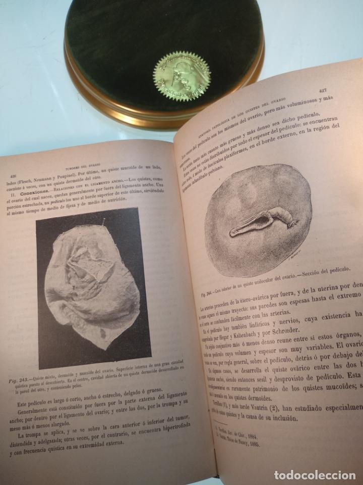 Libros antiguos: TRATADO MÉDICO-QUIRÚRGICO DE GINECOLOGÍA - DOCTORES F. LABADÍELLAGRAVE Y FÉLIX LEGUE - 270 GRABADOS - Foto 23 - 141352306