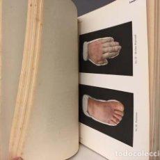 Libros antiguos: ATLAS DE LAS ENFERMEDADES DE LA PIEL. (TOM I) 1913. 78 LÁMINAS COLOR. (JACOBI). Lote 144721658