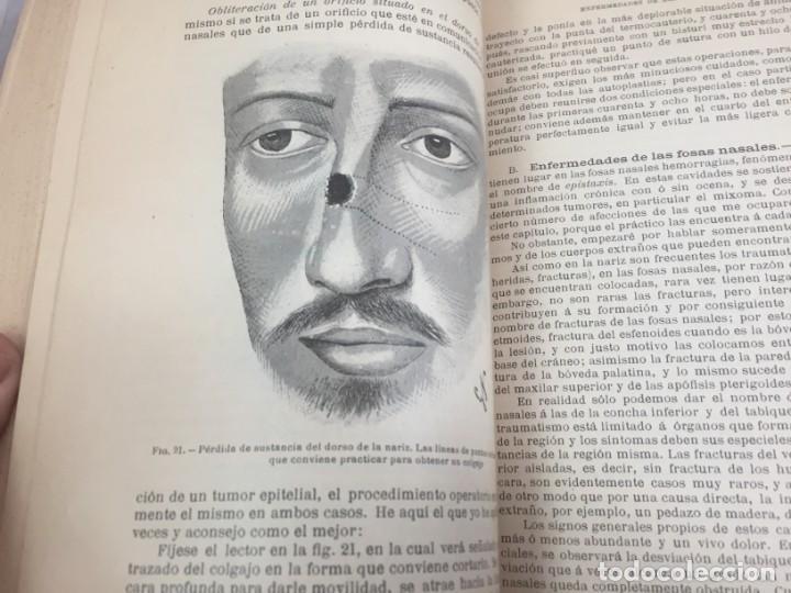 Libros antiguos: Cirugia Clínica Tratado 1895 p. Tillaux dos tomos media piel buen estado - Foto 7 - 221568770
