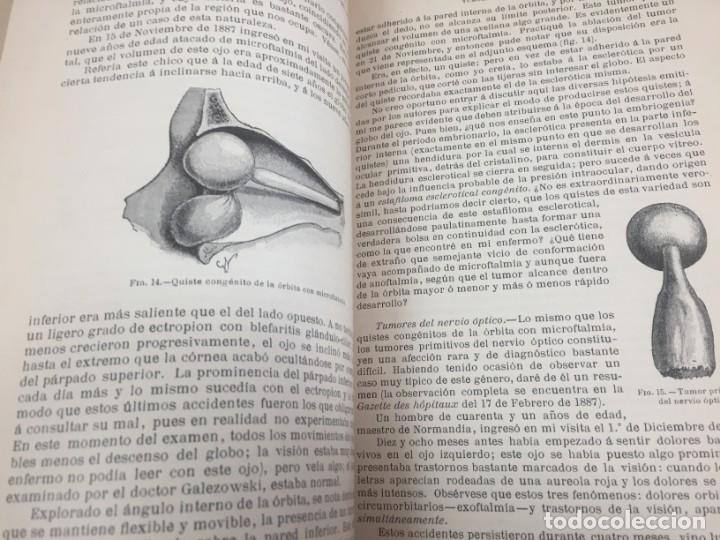 Libros antiguos: Cirugia Clínica Tratado 1895 p. Tillaux dos tomos media piel buen estado - Foto 8 - 221568770