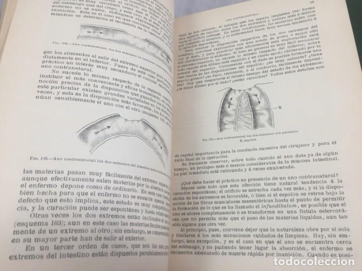 Libros antiguos: Cirugia Clínica Tratado 1895 p. Tillaux dos tomos media piel buen estado - Foto 13 - 221568770