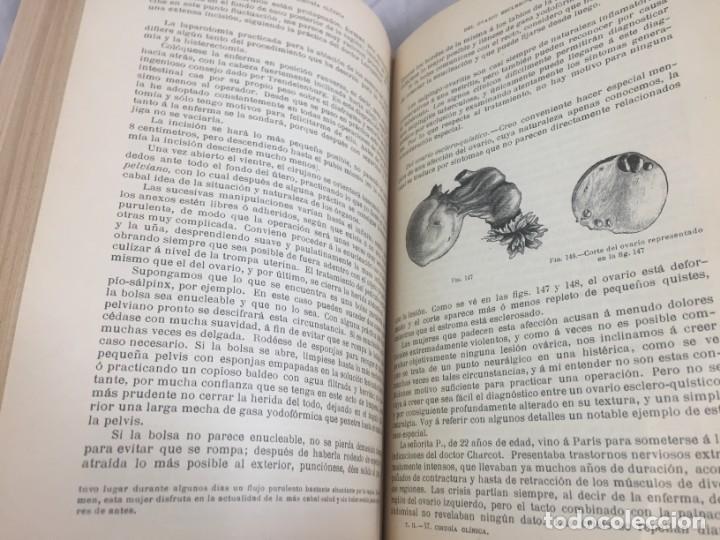 Libros antiguos: Cirugia Clínica Tratado 1895 p. Tillaux dos tomos media piel buen estado - Foto 16 - 221568770