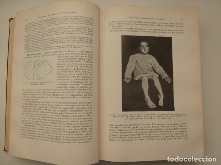 Libros antiguos: TRATADO DE LAS ENFERMEDADES DEL SISTEMA NERVIOSO. CURSCHMANN. KRAMER. EDITORIAL LABOR 1932 - Foto 5 - 146058858