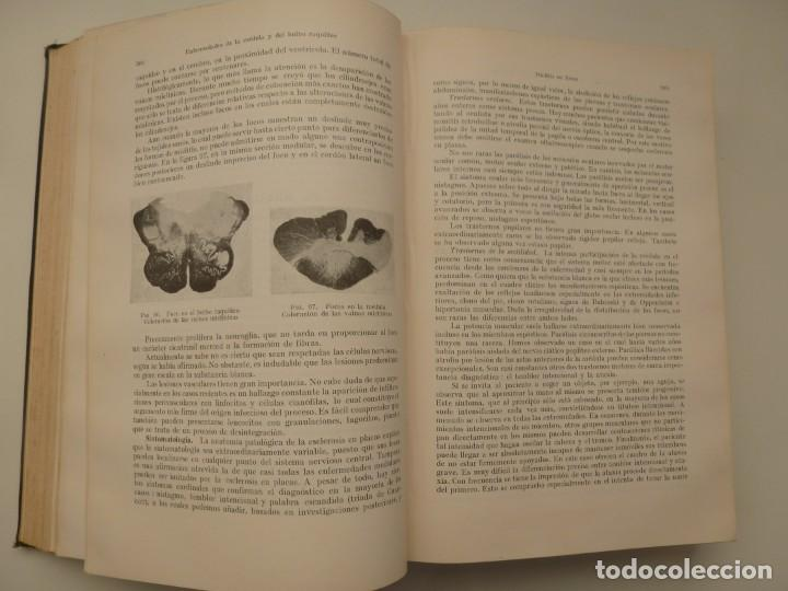Libros antiguos: TRATADO DE LAS ENFERMEDADES DEL SISTEMA NERVIOSO. CURSCHMANN. KRAMER. EDITORIAL LABOR 1932 - Foto 6 - 146058858