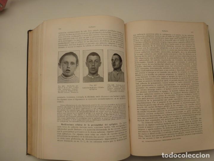 Libros antiguos: TRATADO DE LAS ENFERMEDADES DEL SISTEMA NERVIOSO. CURSCHMANN. KRAMER. EDITORIAL LABOR 1932 - Foto 9 - 146058858