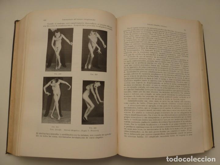 Libros antiguos: TRATADO DE LAS ENFERMEDADES DEL SISTEMA NERVIOSO. CURSCHMANN. KRAMER. EDITORIAL LABOR 1932 - Foto 10 - 146058858
