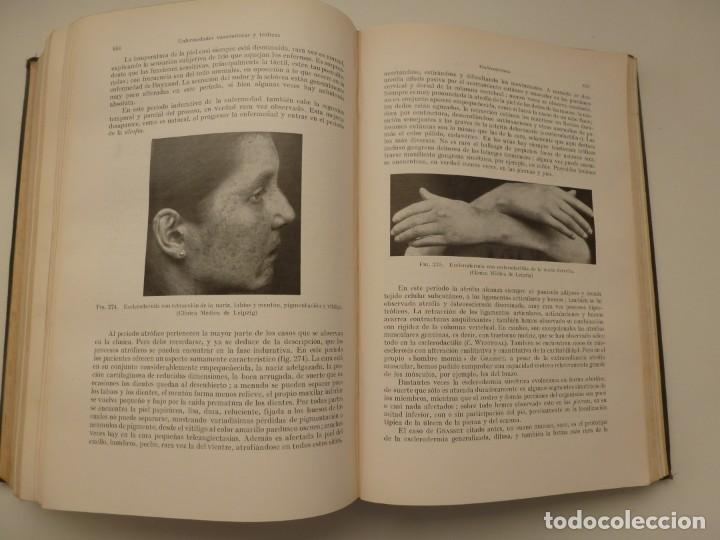 Libros antiguos: TRATADO DE LAS ENFERMEDADES DEL SISTEMA NERVIOSO. CURSCHMANN. KRAMER. EDITORIAL LABOR 1932 - Foto 11 - 146058858