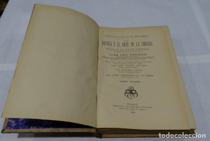 Libros antiguos: LA CIENCIA Y EL ARTE DE LA CIRUGIA. JUAN ERIC ERICHESEN TOMOI- TOMO II (AÑO 1883) TOMO IV 1884 - Foto 9 - 150513216