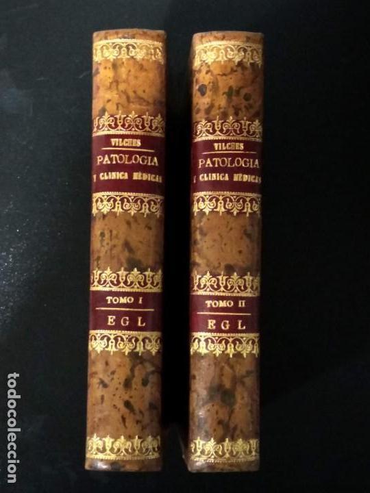 PATOLOGÍA Y CLÍNICA MÉDICAS. VILCHES. 1875. 2 TOMOS (Libros Antiguos, Raros y Curiosos - Ciencias, Manuales y Oficios - Medicina, Farmacia y Salud)