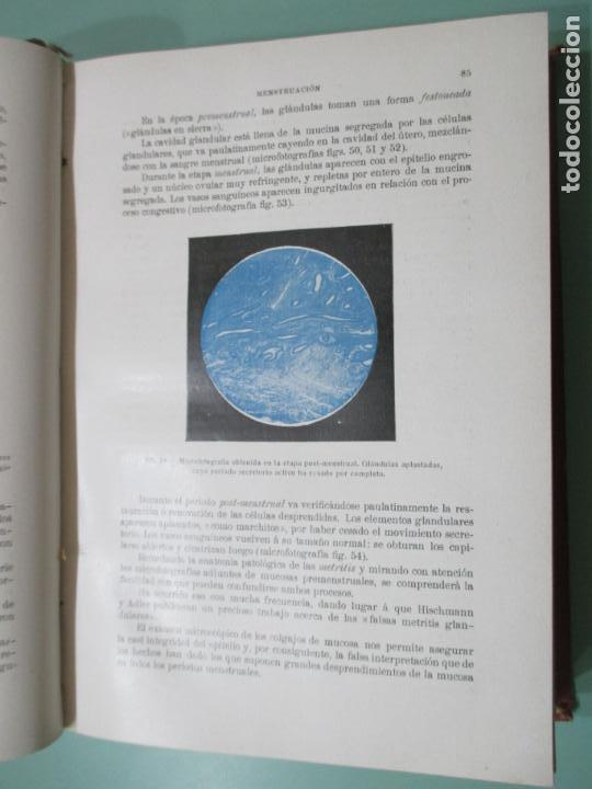 Libros antiguos: TRATADO DE OBSTETRICIA POR EL DR. D. SEBASTIÁN RECASENS GIROL. BARCELONA 1916 - Foto 3 - 149480914