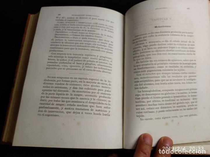 Libros antiguos: Patología y clínica médicas. Vilches. 1875. 2 tomos - Foto 13 - 148696954